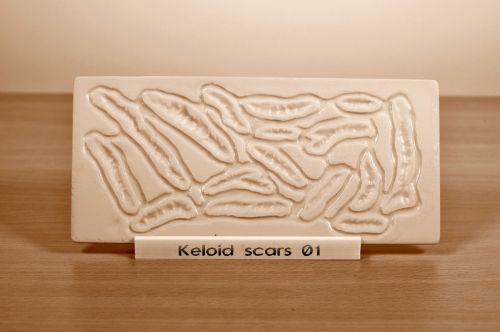 Prosthetic mould Keloid Scars 01