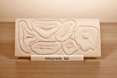 Prosthetic mould Wounds 02